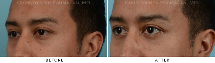 Lower Lid Blepharoplasty Before & After Photo - Patient Seeing Side - Patient 17D