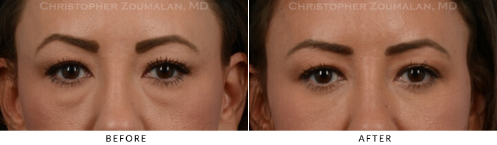 Lower Lid Blepharoplasty Before & After Photo - Patient Seeing Straight - Patient 18A