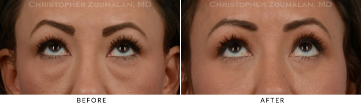 Lower Lid Blepharoplasty Before & After Photo - Patient Seeing Up - Patient 18B