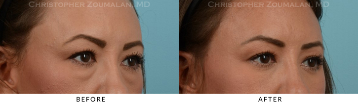Lower Lid Blepharoplasty Before & After Photo -  - Patient 18C
