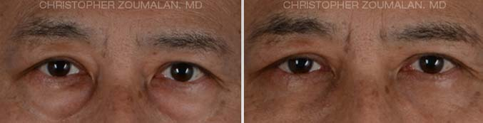 Lower eyelid blepharoplasty Front View