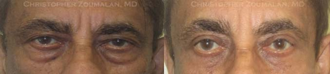 Bilateral upper lid ptosis repair, upper and lower lid blepharoplasty with fat repositioning to lower lids, and left external browpexy - male patient before and after picture