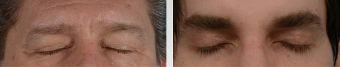 A male blepharoplasty procedure is performed with the utmost precision and care to ensure minimal scarring - male patient before and after picture