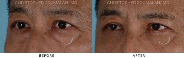 Male Blepharoplasty Patient 1