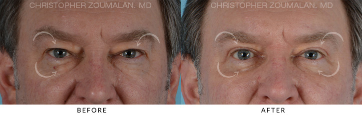 Male Blepharoplasty Patient 2