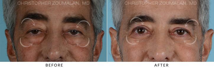 Male Blepharoplasty Patient 4