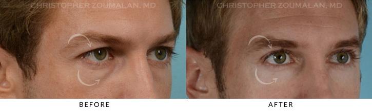 Male Blepharoplasty Patient 5