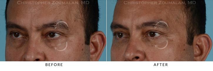 Male Blepharoplasty Patient 6