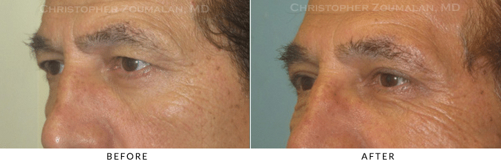 Male Brow Lift Before & After Photo -  - Patient 10