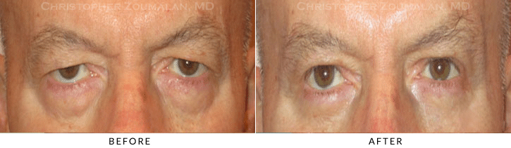 Male Brow Lift Before & After Photo -  - Patient 11