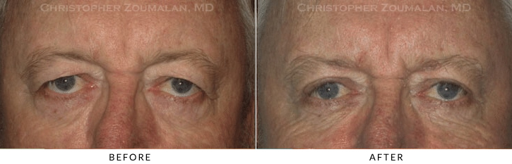 Male Brow Lift Before & After Photo -  - Patient 12