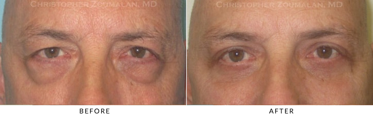 Male Brow Lift Before & After Photo -  - Patient 13