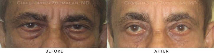 Male Brow Lift Before & After Photo -  - Patient 14