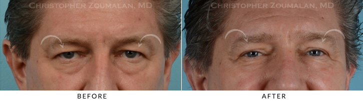 Male Brow Lift Patient 1