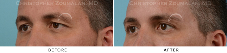 Male Brow Lift Patient 2