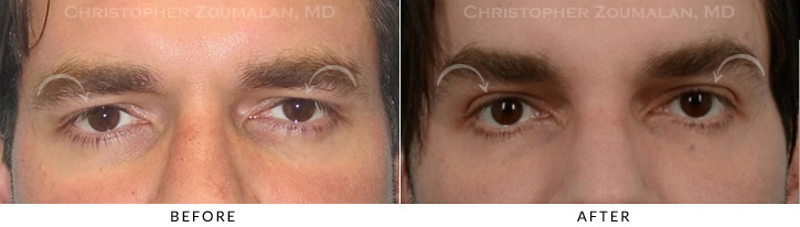 Male Brow Lift Patient 3