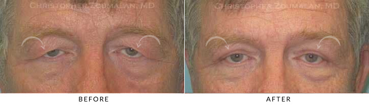 Male Brow Lift Patient 4