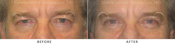 Male Brow Lift Patient 5