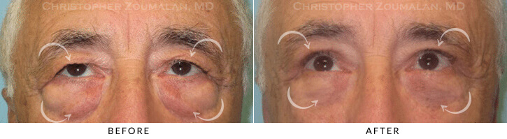 Male Brow Lift Patient 6