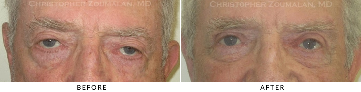 Male Brow Lift Before & After Photo -  - Patient 7
