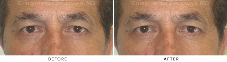 Male Brow Lift Before & After Photo -  - Patient 9