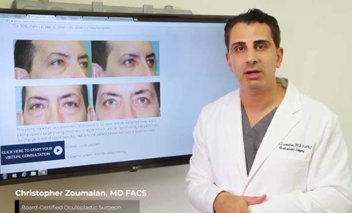 Male Blepharoplasty Video