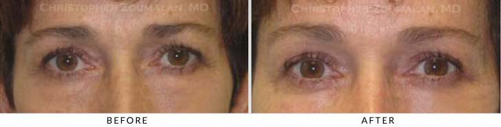 Midface Lift Before & After Photo - Patient Seeing Straight - Patient 1A