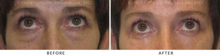 Midface Lift Before & After Photo - Patient Seeing Up - Patient 1B