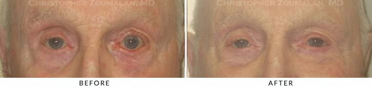 Midface Lift Before & After Photo - Patient Seeing Straight - Patient 2