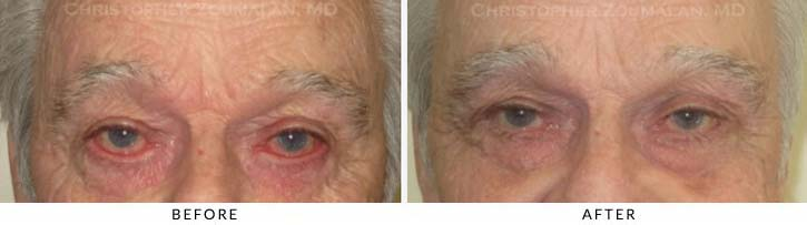 Midface Lift Before & After Photo - Patient Seeing Straight - Patient 3