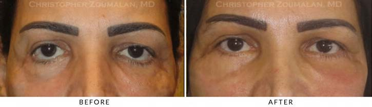 Midface Lift Before & After Photo - Patient Seeing Straight - Patient 4