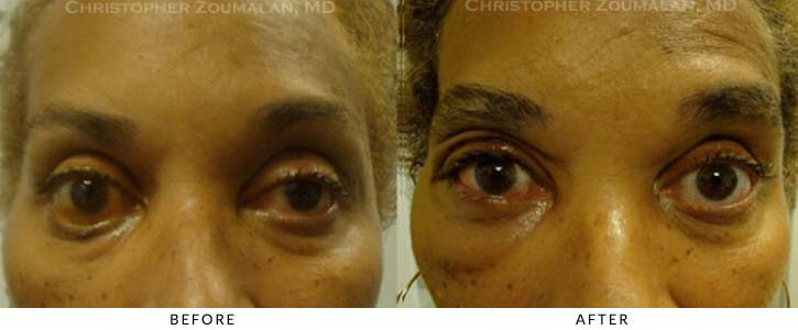 Midface Lift Before & After Photo - Patient Seeing Straight - Patient 5