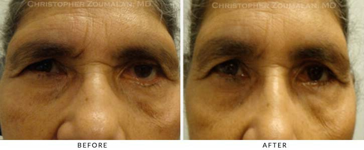 Midface Lift Before & After Photo - Patient Seeing Straight - Patient 6