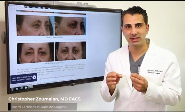 Natural Looking Blepharoplasty® Technique Video