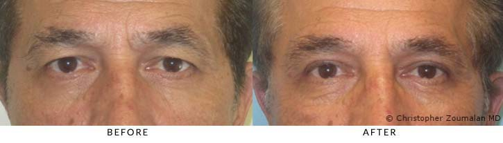 Bilateral upper lid ptosis repair (blepharoplasty) and external browpexy - male patient before and after picture