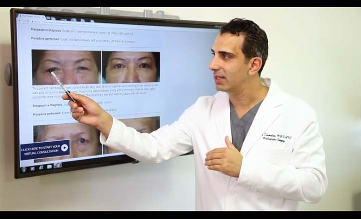 Ptosis Surgery Droopy Eyelids Surgery - Click to view the Video