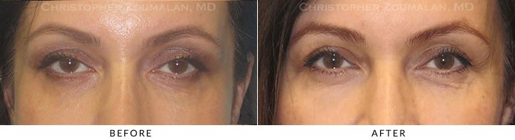 Ptosis Surgery Before & After Photo -  - Patient 11