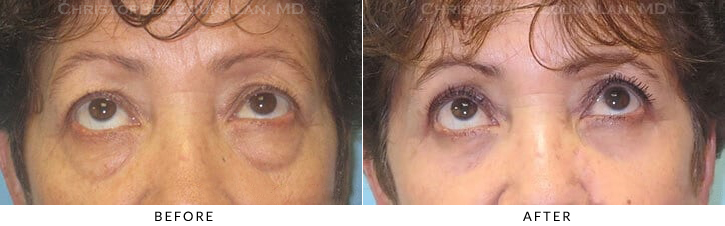 Ptosis Surgery Before & After Photo -  - Patient 12