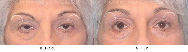 Ptosis Surgery Before & After Photo -  - Patient 1