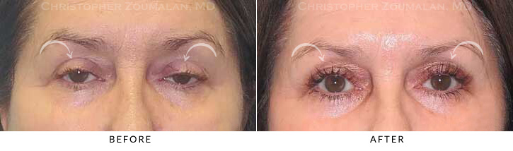 Ptosis Surgery Before & After Photo -  - Patient 2