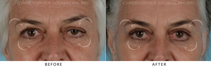 Ptosis Surgery Before & After Photo - Patient Seeing Straight - Patient 3A