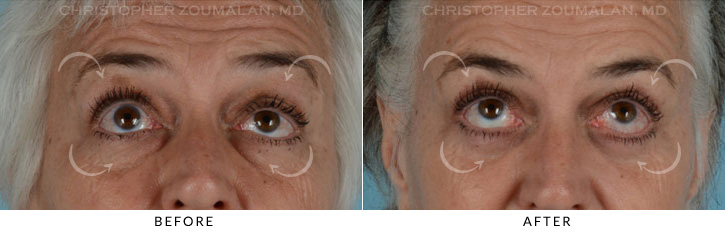 Ptosis Surgery Before & After Photo - Patient Seeing Up - Patient 3B
