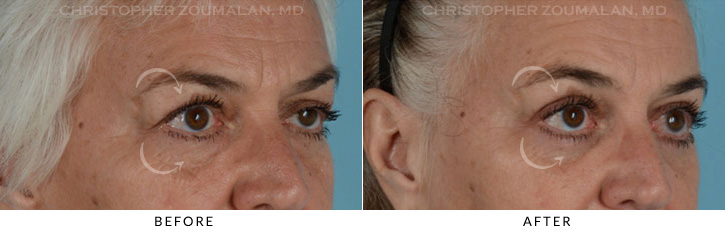 Ptosis Surgery Before & After Photo - Patient Seeing Side - Patient 3D