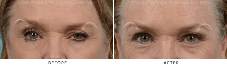 Ptosis Surgery Before & After Photo -  - Patient 4