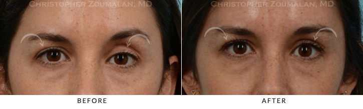 Ptosis Surgery Before & After Photo -  - Patient 5
