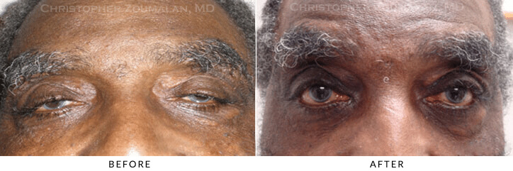 Ptosis Surgery Before & After Photo -  - Patient 67