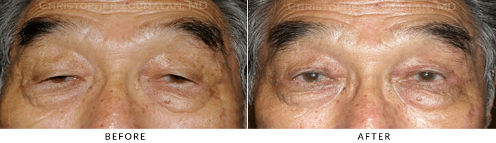Ptosis Surgery Before & After Photo -  - Patient 68