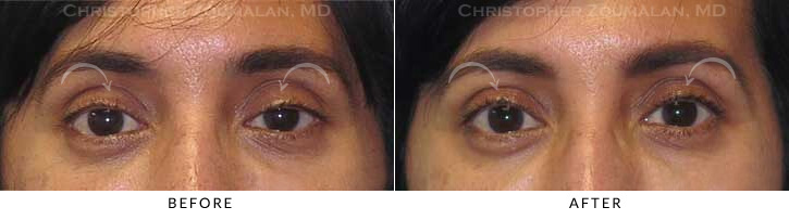 Ptosis Surgery Before & After Photo -  - Patient 6