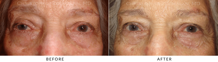 Ptosis Surgery Before & After Photo -  - Patient 69