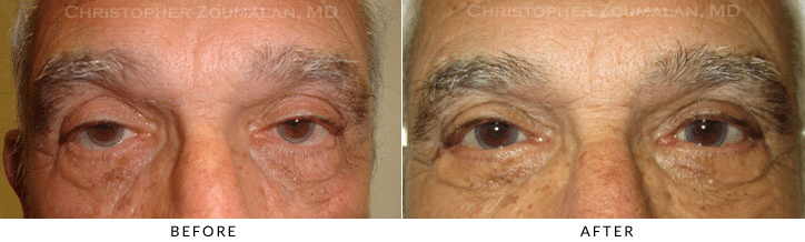 Ptosis Surgery Before & After Photo -  - Patient 70
